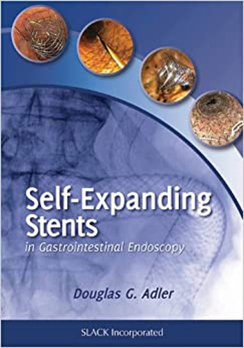 Self Expanding Metal Stents book cover